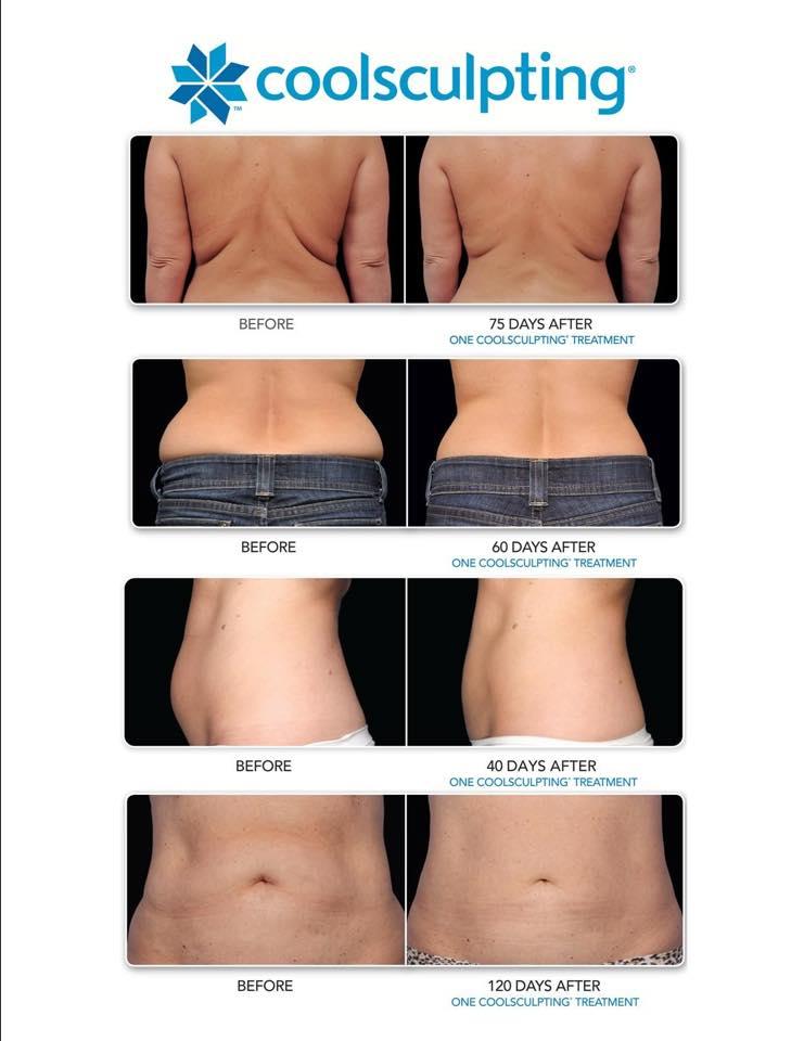 Tabletă efervescentă de slăbire de înaltă calitate, dietă sănătoasă pentru scăderea în greutate