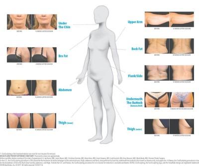 clinica slabire abdomen)